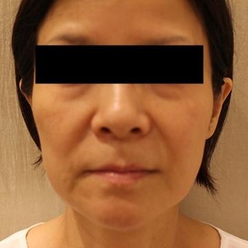 西宮SHUHEI美容クリニックのシワ・たるみ(照射系リフトアップ治療)の症例写真[ビフォー]