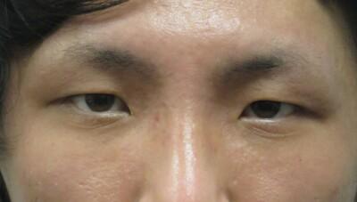 眼瞼下垂(挙筋短縮法)+瞼の脂肪取りの症例写真[ビフォー]