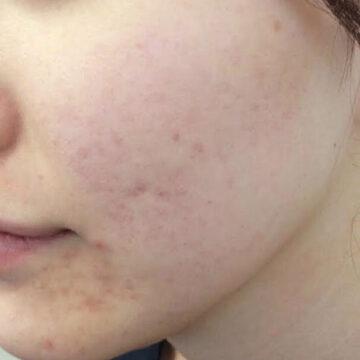 A CLINIC(エークリニック)のシミ治療(シミ取り)・肝斑・毛穴治療の症例写真[ビフォー]
