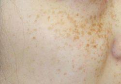 すず美容形成外科医院 【女性専門クリニック】のシミ取り・肝斑・毛穴治療の症例写真[ビフォー]