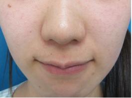 鼻のプロテーゼ・鼻尖修正・小鼻縮小(術後1ヵ月)[ビフォー]