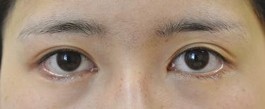 他院グラマラスライン形成手術後修正(植皮)※の症例写真[ビフォー]