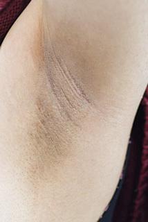 みずほクリニックのその他の美容皮膚科治療の症例写真[ビフォー]