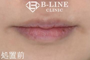 B-LINE CLINIC (ビーラインクリニック)のシミ治療(シミ取り)・肝斑・毛穴治療の症例写真[ビフォー]