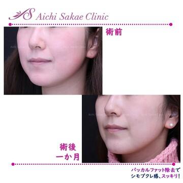 あいち栄クリニックの輪郭・顎の整形の症例写真