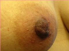 ■分裂乳首の症例写真[ビフォー]