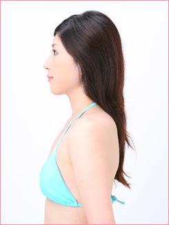 ■豊胸(人工乳腺法)の症例写真[ビフォー]