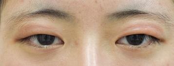 タウン形成外科クリニックの目・二重の整形の症例写真[ビフォー]