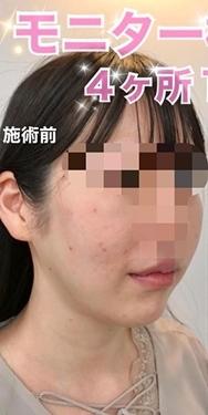 ルラ美容クリニックの顔のしわ・たるみの整形(リフトアップ手術)の症例写真[ビフォー]
