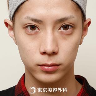 東京美容外科の目元の整形、くま治療の症例写真[アフター]