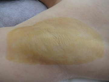 心斎橋フェミークリニックのわきが手術・多汗症治療の症例写真[アフター]