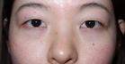 麹町皮ふ科・形成外科クリニックの症例写真[ビフォー]