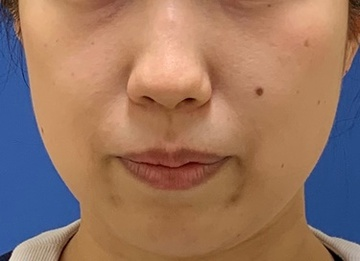 トキコクリニック 京都四条院のシワ・たるみ(照射系リフトアップ治療)の症例写真[ビフォー]