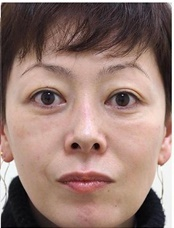 Theoryクリニック (セオリークリニック)の目元整形・クマ治療の症例写真[アフター]