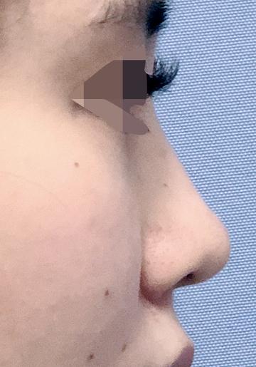 湘南美容クリニック 上野院の鼻の整形の症例写真[ビフォー]