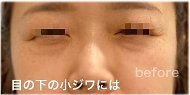 マイクロボトックスの症例写真[ビフォー]