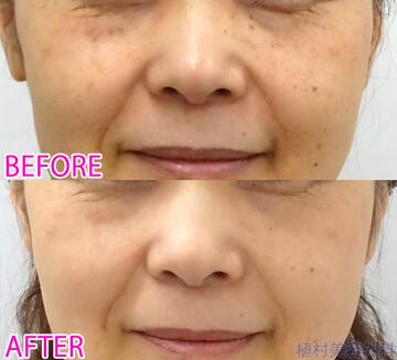 植村美容外科のシミ治療(シミ取り)・肝斑・毛穴治療の症例写真