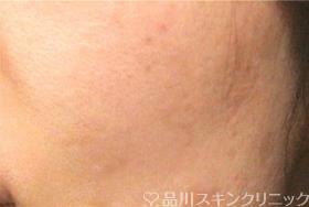 品川美容外科のシミ治療(シミ取り)・肝斑・毛穴治療の症例写真[アフター]