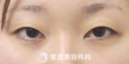 東京美容外科の症例写真[ビフォー]