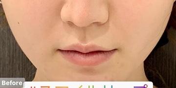 ルラ美容クリニック 高田馬場院の口もと、唇の整形の症例写真[ビフォー]