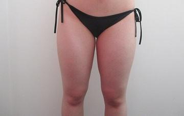大阪 雅 -miyabi- 美容外科の脂肪吸引の症例写真[ビフォー]