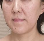 新宿ビューティークリニックのシワ・たるみ(照射系リフトアップ治療)の症例写真[アフター]