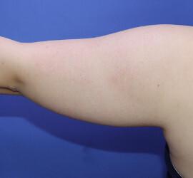 オザキクリニックLUXE新宿の脂肪吸引の症例写真[ビフォー]