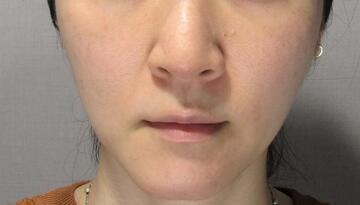 ウィクリニック 大宮院の顔のしわ・たるみの整形の症例写真[ビフォー]