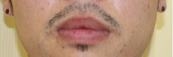 千葉中央美容形成クリニックの口元・唇の整形の症例写真[ビフォー]