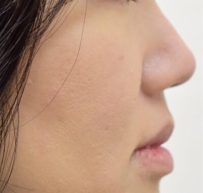 鼻尖形成術+耳介軟骨移植術 静脈麻酔併用の症例写真[アフター]