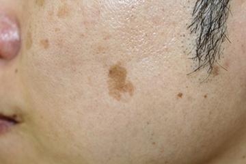 タウン形成外科クリニックのシミ取り・肝斑・毛穴治療の症例写真[ビフォー]