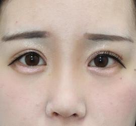 オザキクリニックLUXE新宿の目・二重の整形の症例写真[アフター]