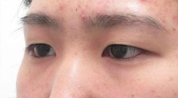 品川美容外科の目・二重の整形の症例写真[ビフォー]