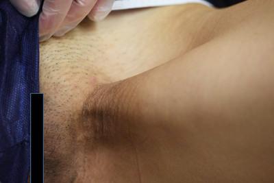 鼠径(そけい)部の黒ずみ除去の症例写真[ビフォー]