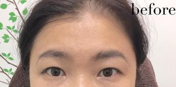 高輪皮膚科・形成外科のアートメイクの症例写真[ビフォー]