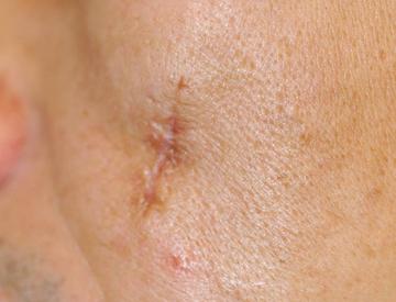 シロノクリニック恵比寿の傷跡治療、ケロイドの症例写真[ビフォー]