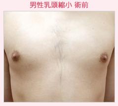 の乳首・乳輪の整形の症例写真[ビフォー]