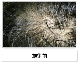 イデア美容皮膚科クリニック柏院の薄毛治療・AGA・発毛の症例写真[ビフォー]