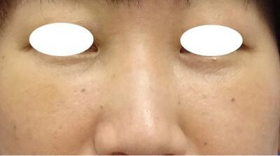 目の下のたるみ取り+コンデンスリッチファット(脂肪注入)[アフター]