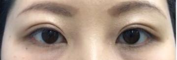 の目・二重の整形の症例写真[アフター]