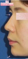 湘南美容クリニック 大阪梅田院のその他の美容整形の症例写真[アフター]