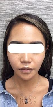 東京ゼロクリニック銀座の顔のしわ・たるみの整形(リフトアップ手術)の症例写真[アフター]