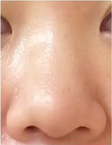 リッツ美容外科 大阪院の鼻の整形の症例写真[ビフォー]