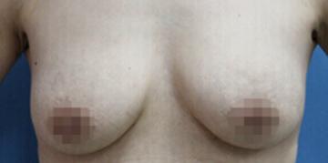 の豊胸・胸の整形の症例写真[アフター]