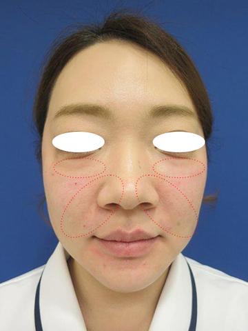 フェミークリニックのシワ・たるみ(照射系リフトアップ治療)の症例写真[アフター]