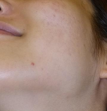 さやか美容クリニック・町田のニキビ治療・ニキビ跡の治療の症例写真[アフター]