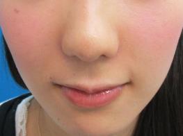 鼻のプロテーゼ・鼻尖修正・小鼻縮小(術後1ヵ月)[アフター]