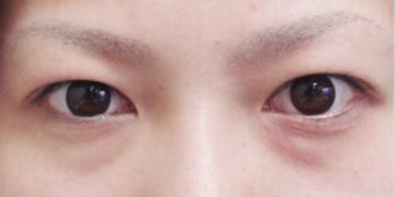 大塚美容形成外科 東京大塚院の目・二重整形の症例写真[ビフォー]