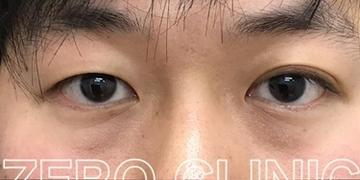 東京ゼロクリニック銀座の目元の整形、くま治療の症例写真[ビフォー]