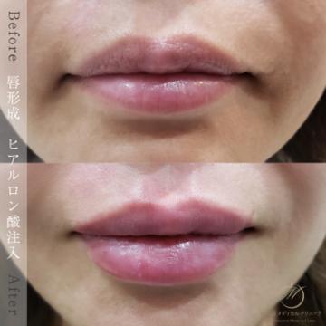 表参道メディカルクリニック新宿院(メディカルブロー新宿院)の口もと、唇の整形の症例写真